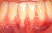 Lower Front Teeth Before Surgery