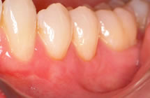 Lower Prosterior Teeth After