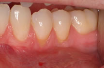 Lower Prosterior Teeth Before